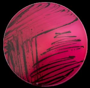 Isolement de Salmonella sur milieu XLD