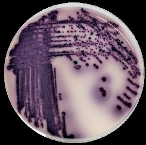 Recherche-de-Salmonella-sur-milieu-RapidSalmo