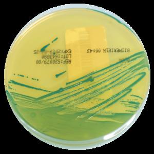 Recherche-et-dénombrement-de-Listeria-sur-milieu-ALOA