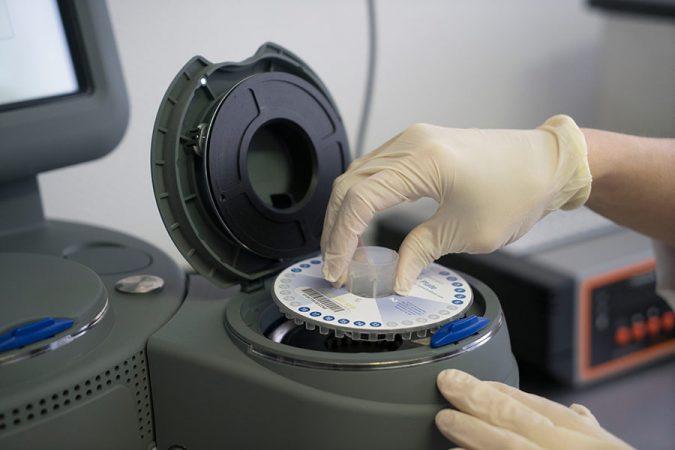 Peparation-echantillons-pour-analyses-rapides-par-PCR-quantitative